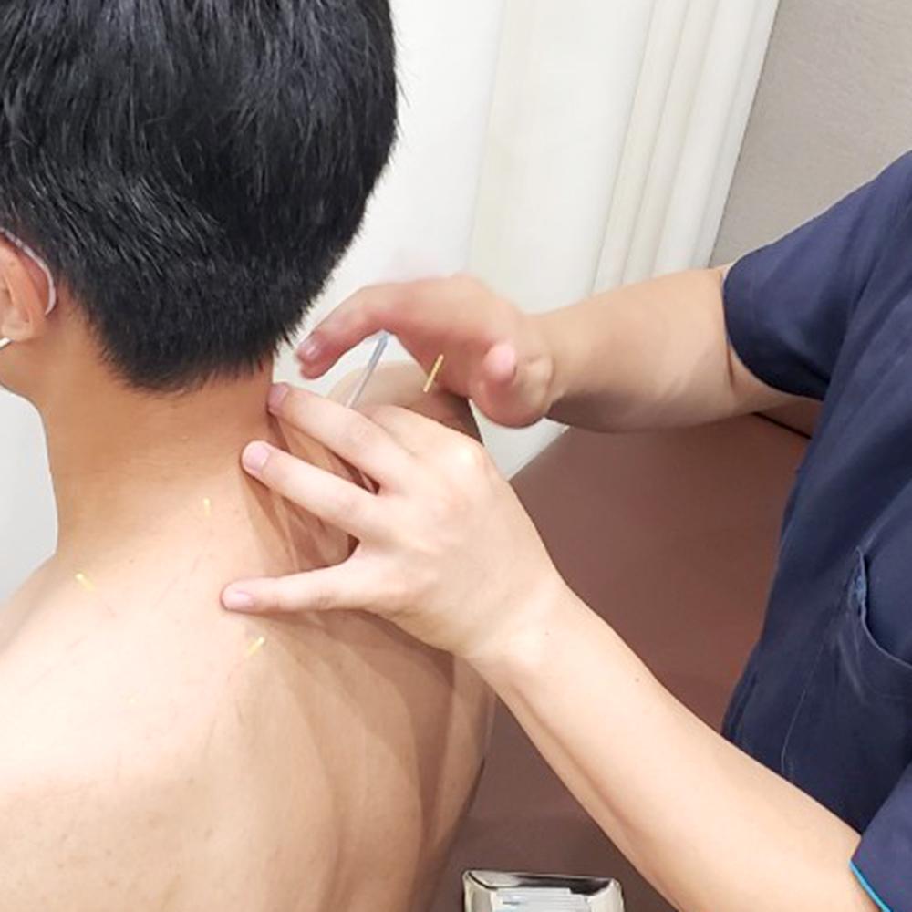 鍼灸治療1部位